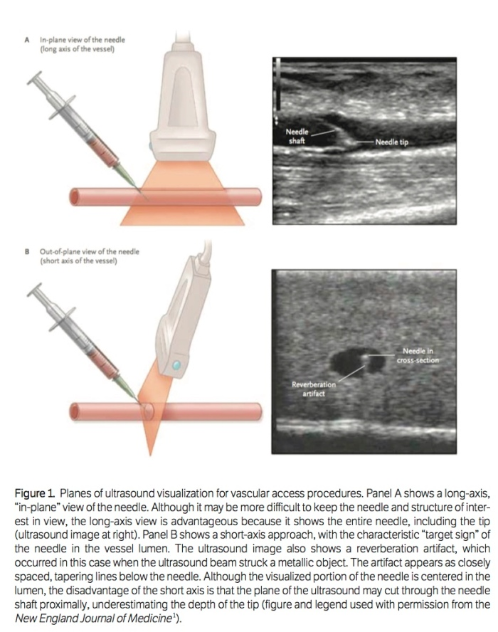 Planes of Ultrasound in Vascular Access