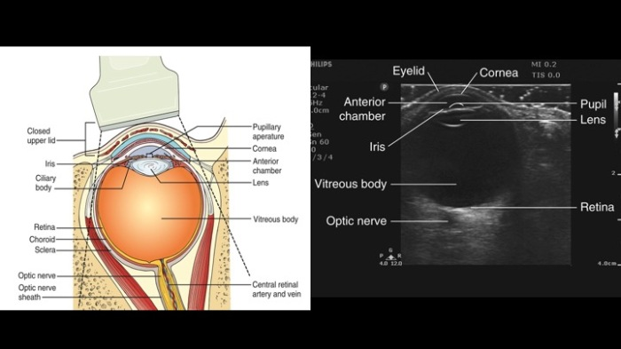 Eye Ultrasound anatomy